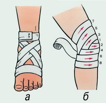 Резаная рана локтевого сустава первая медецинская помощь осложнения эндопротезирования тазобедренного сустава